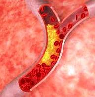 Продукты питания для понижения холестерин